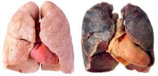 pengaruh rokok