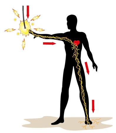 cedera akibat listrik