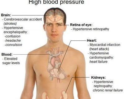 organ target krisis hipertensi