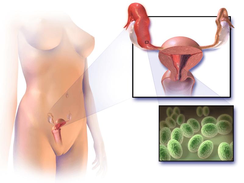 Ilustrasi Penyakit Inflamatorik Panggul