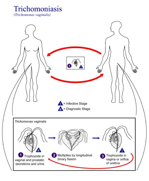 Ilustrasi Trikomoniasis Penyebab Keputihan