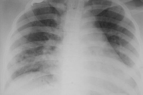 alveolitis pada keracunan paraquat