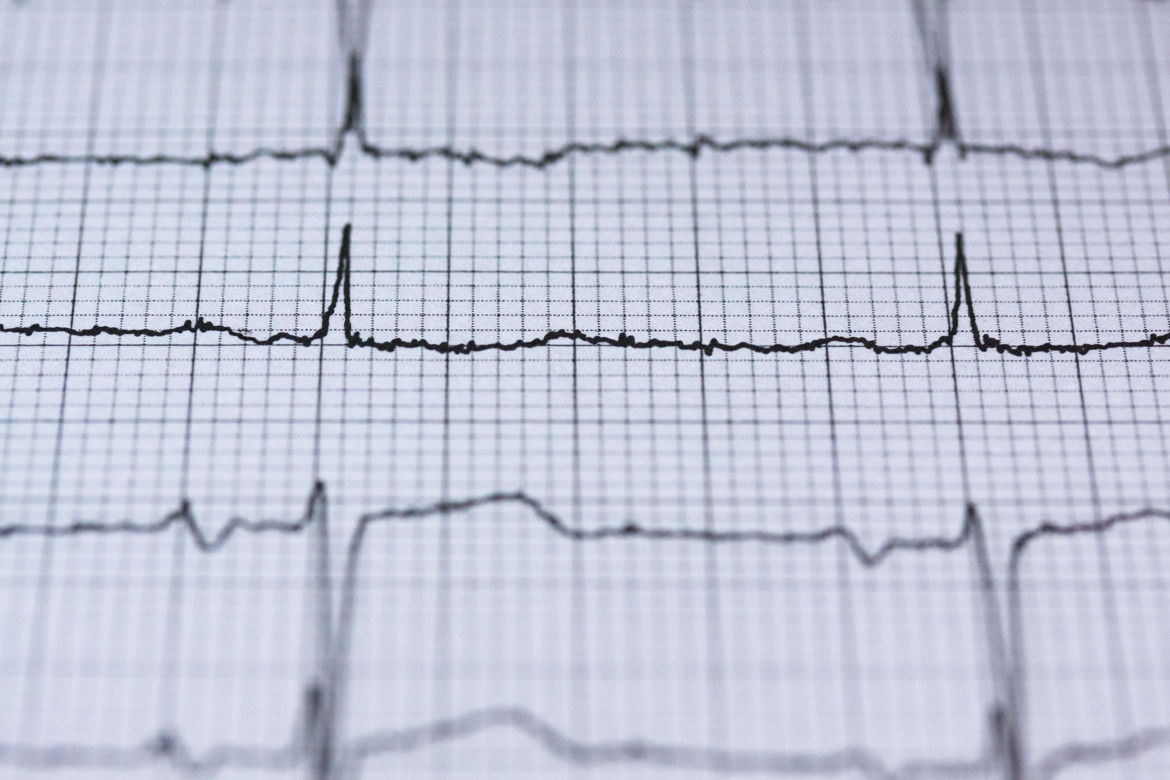 Elektrokardiografi Serangan Jantung koroner