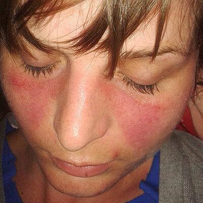Ruam Malar Pada Lupus