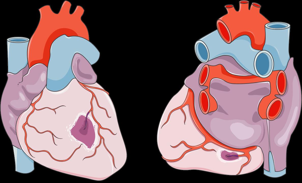 Sumbatan pembuluh darah pada serangan jantung