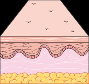 kulit normal