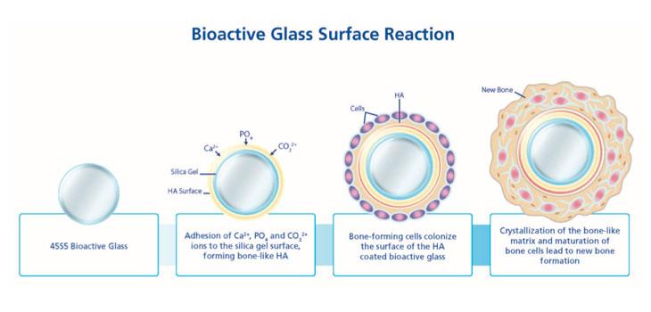Reaksi Permukaan Bioglass dengan Jaringan Tubuh