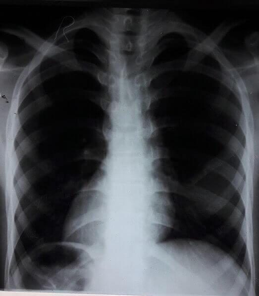 Dextrocardia pada rongent thoraks
