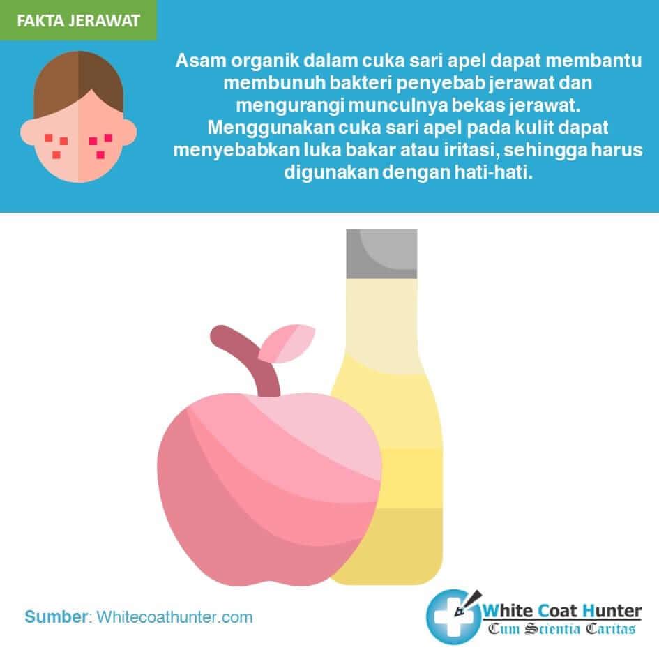 Cuka sari apel dan jerawat
