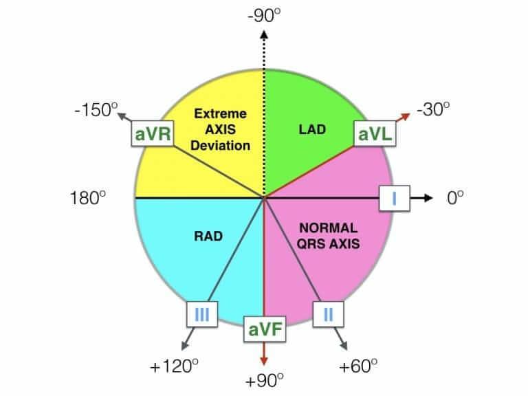 Diagram Axis