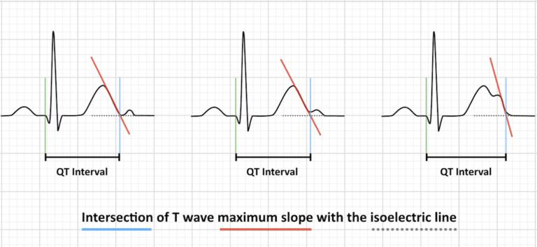 Metode Pengukuran Interval QT