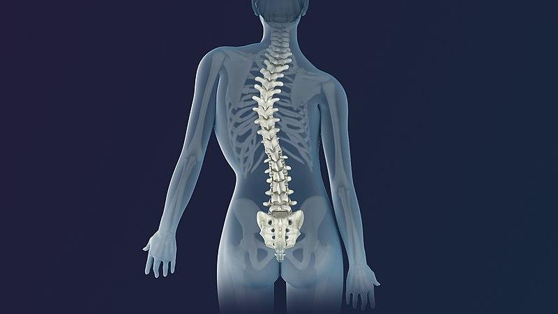 Skoliosis pada Tulang Belakang